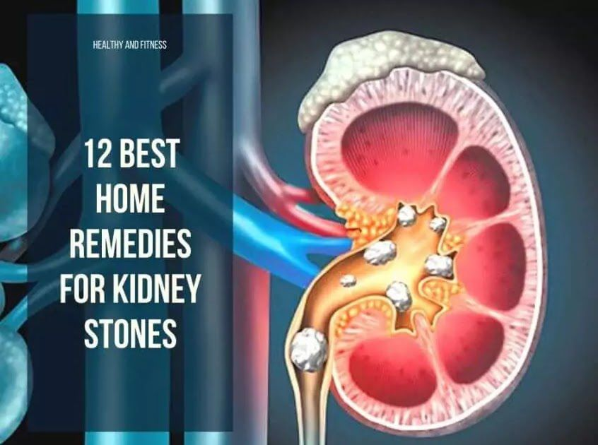 12 BEST HOME REMEDIES FOR KIDNEY STONES